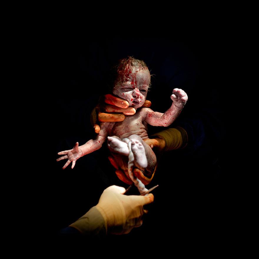 © Christian Berthelot - Leanne, 13 secondes après sa naissance