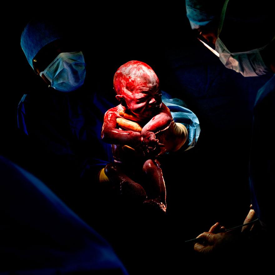 © Christian Berthelot - Margaux, 7 secondes après sa naissance