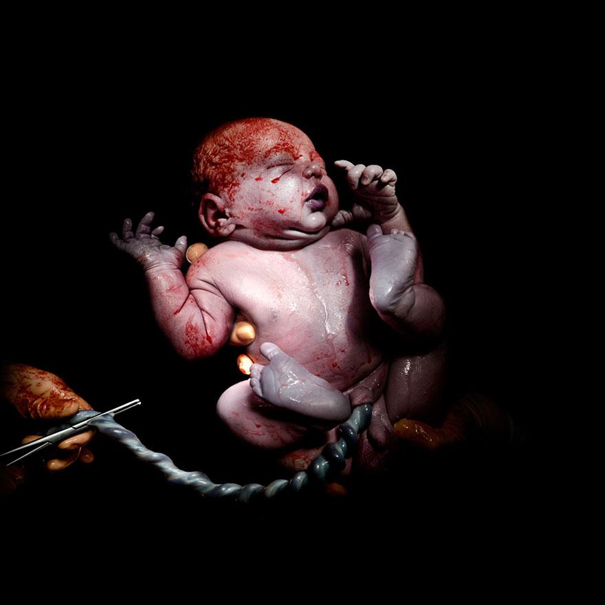 © Christian Berthelot - Kevin, 13 secondes après sa naissance