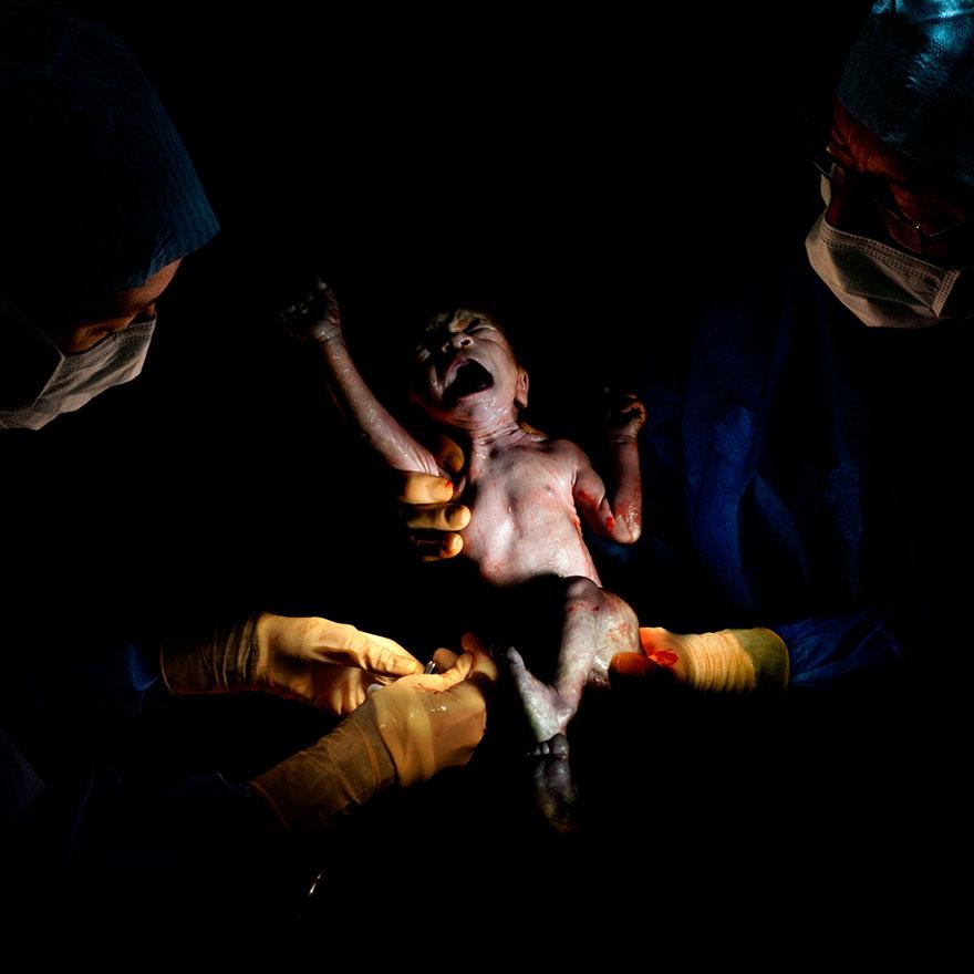 © Christian Berthelot - Steven, 15 secondes après sa naissance