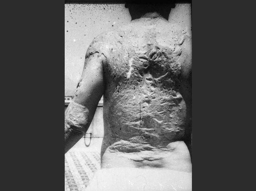Le dos d'une victime du bombardement d'Hiroshima - © SIPA/RETRO/LIBRARY OF CONGRESS/E.R.L.