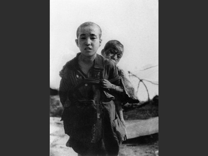 Deux enfants ayant survécu  le bombardement atomique d'Hiroshima - © AFP