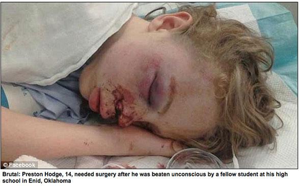Preston Hodge, 14 ans, a besoin d'une chirurgie après avoir été battu et laissé inconscient par un camarade de classe de son collège à Enid, Oklahoma Crédits : DailyMail