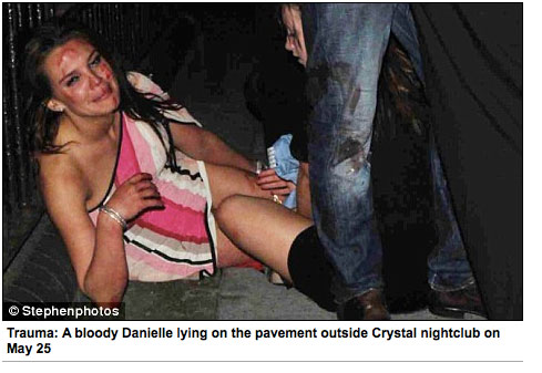 Danielle Lloyd, après son agression le 25 mai 2009.