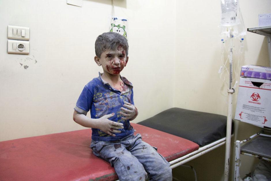 © Karam Al-Masria - AFP PHOTO - Voici un exemple de photo de conflit que Marina doit inspecter et éditer régulièrement. C'est le portrait d'un enfant syrien, attendant d'être pris en charge dans un hôpital de fortune, après avoir subi les bombardements russes et syriens des quartiers est d'Alep défendus par les rebelles le 24 septembre 2016.